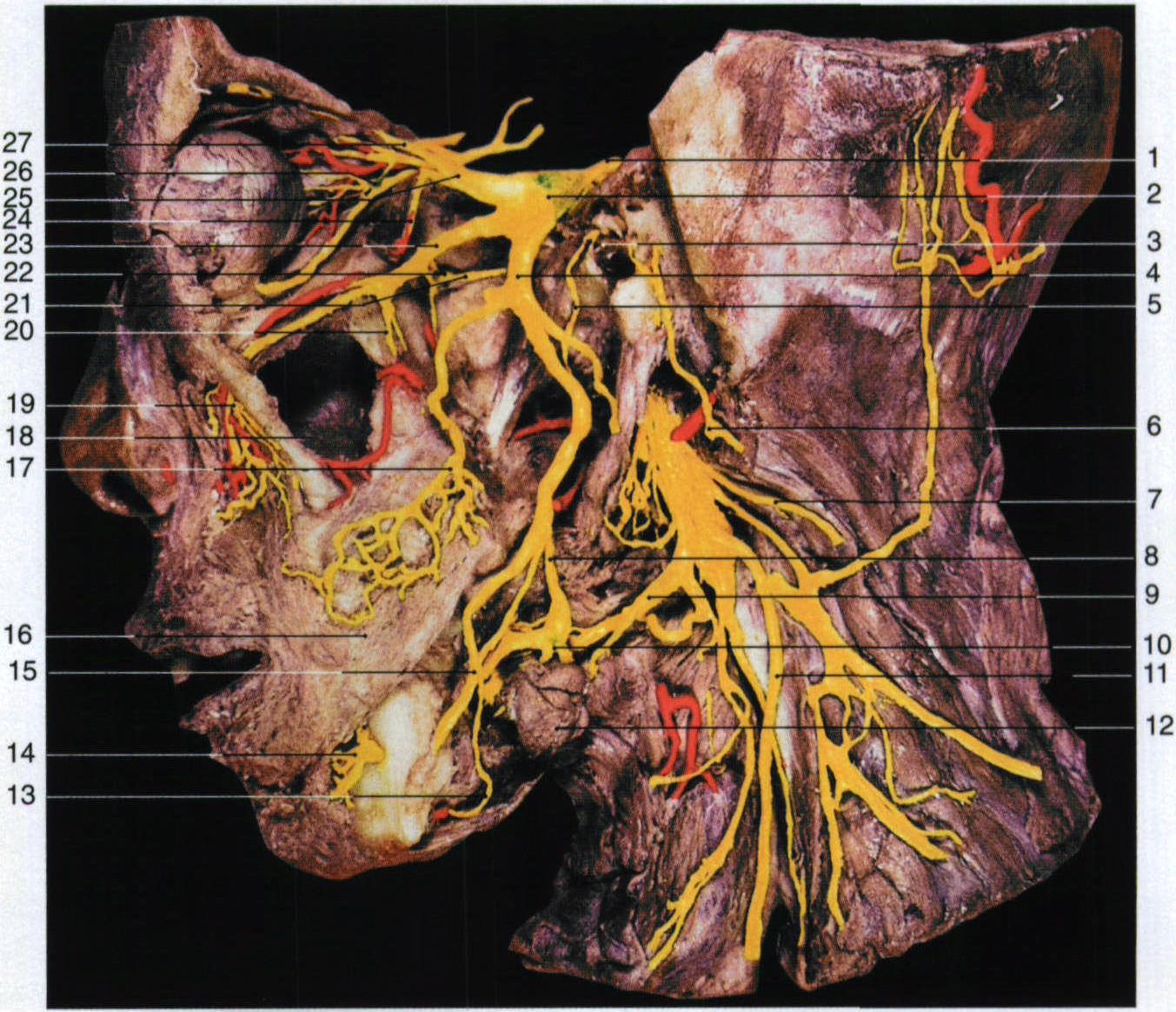 三叉神经(外侧面观) : 1. 三叉神经trigeminal n.2. 三叉神经节trigeminal ganglion3. 鼓膜tympanic membrane4. 下颌神经mandibular n.5. 鼓索chorda tympani6. 面神经facial n.7. 副神经accessory n.8. 舌神经lingual n.9. 舌下神经hypoglossal n.10. 下颌下神经节submandibu .